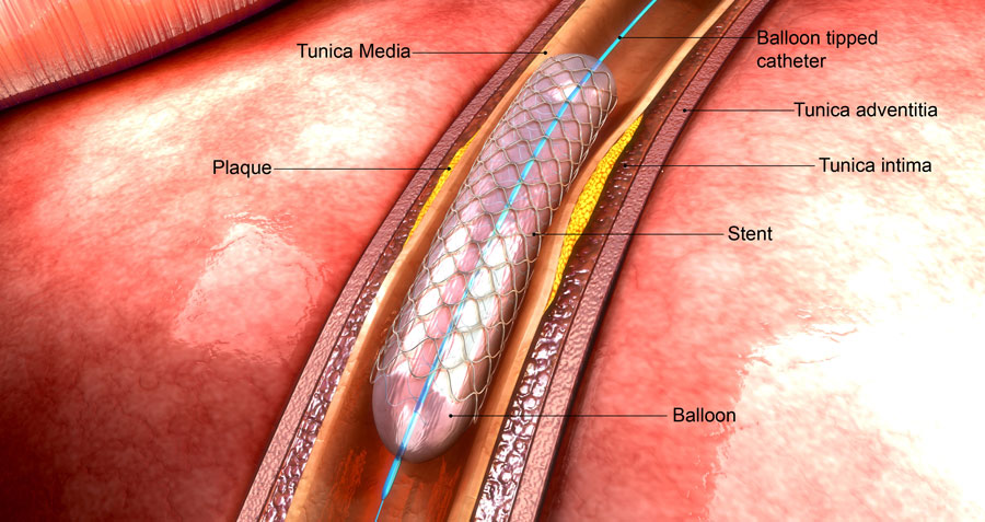 parylene coating and stents
